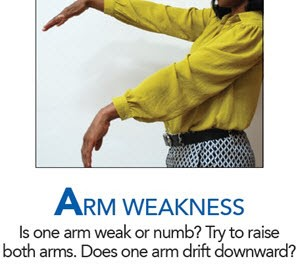 ARM WEAKNESS Is one arm weak or numb? Try to raise both arms. Does one arm drift downward?