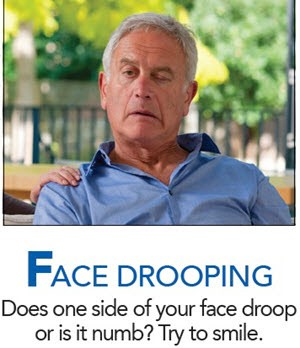 FACE DROOPING Does one side of your face droop or is it numb? Try to smile.
